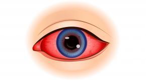 uveitis eye iritis